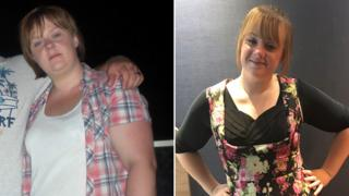 Jaimie Treharne pre and post-weight loss