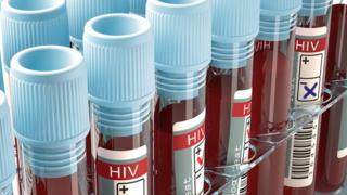 Test tube for HIV