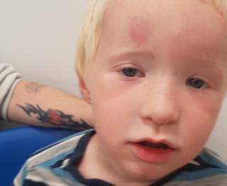 Jack Hall, 4, after being struck by white board