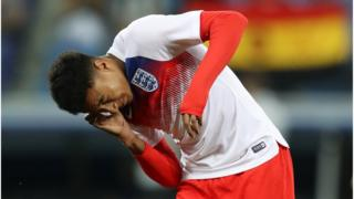Lingard troubled by bug