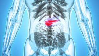 Câncer no pâncreas