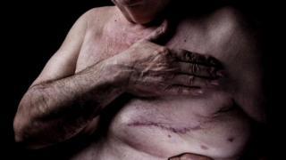 Пожилой мужчина прикрывает рукой голую грудь