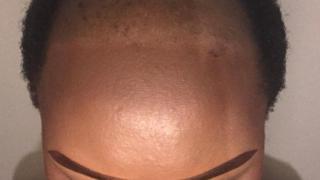 Bandile bald head