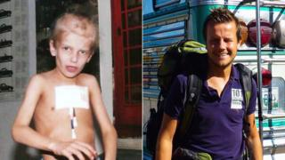 Two pictures of Greig Trout - one as a sick child and one as a healthy adult
