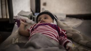 Criança em centro de tratamento de cólera do MSF no Iêmen