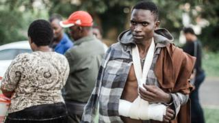 Foreigner wey wunjure for xenophobic attack