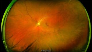 imagem ocular