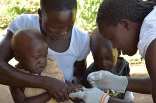 Josephine does a blood test for malaria