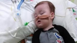 Alfie in hospital