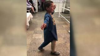 طفل أفغاني يرقص بساق اصطناعية