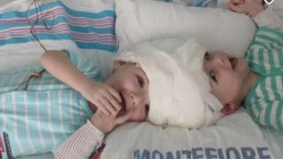 The two boys preparing for surgery