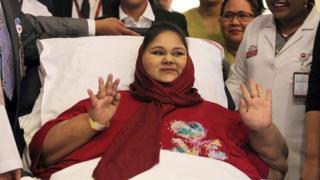 Eman Ahmed Abd El Aty postrada en una cama
