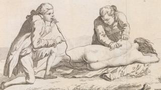 Plate illustrating the resuscitation of a drowned woman published in Paris in 1774