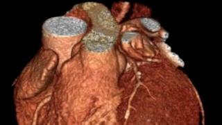 Imagem de rotina de scan cardíaco