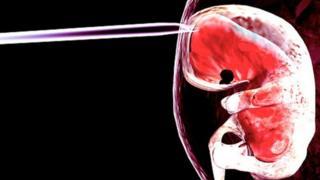 ภาพจำลองการใช้เข็มขนาดเล็กแทงเข้าไปในถุงน้ำคร่ำของตัวอ่อนทารก