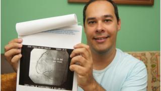 João Paulo Mauler mostra imagem do coração operado