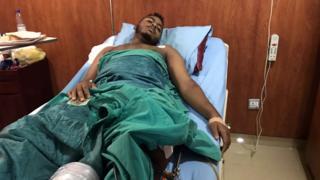 An injured protester in Khartoum, 7 June