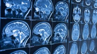 MRI scans