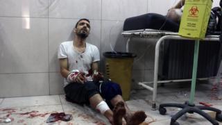 توقفت أغلب مستشفيات حلب عن تقديم الخدمات العلاجية بسبب القصف المتواصل