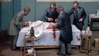 Médicos durante cirurgia
