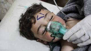 A Syrian child receives treatment at a field hospital in Saraqeb after an alleged chemical attack in Khan Sheikhoun (4 April 2017)