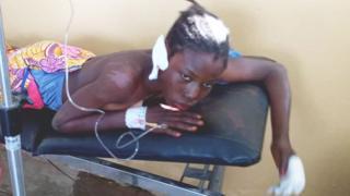 A victim lying on hospital bed