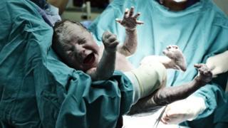 Foto genérica de un bebé