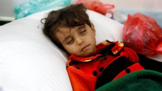 A girl infected with cholera lies on the ground at a hospital in Sanaa, Yemen (7 May 2017)