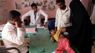 طفل يعاني من سوء التغذية بسبب شح الغذاء في اليمن