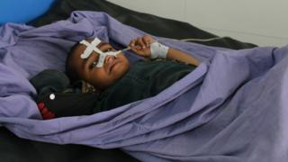 An Afghan child receives treatment at a hospital in Kunduz province, Afghanistan, 3 April 2018
