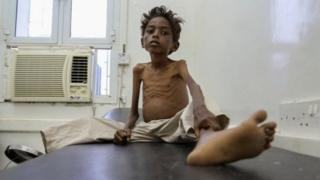 5歲的也門男童Mohannad Ali去年在也門一家醫院接受幫助。他兩歲的表弟已經餓死。