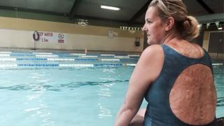 A britânica Sylvia Mac sentada à beira de uma piscina em Londres