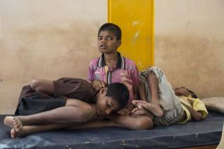 Three child patients in a hospital in India