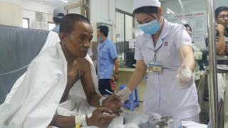 Một nạn nhân từ đám cháy đang được điều trị tại bệnh viện hôm 23/3