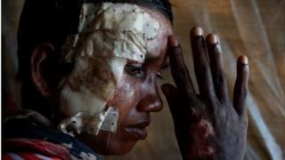 Пострадавший рохинджа