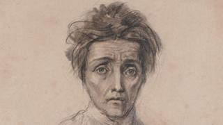 Una de varias ilustraciones de pacientes psiquiátricos incluidas en la muestra de Instituto Real de Médicos de Edimburgo.