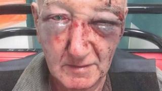 Rosto de Laidlaw, de 70 anos, ficou desfigurado