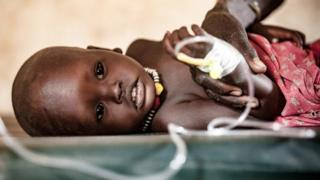 One year-old Hakaroom is treated for severe pneumonia at a health care centre supported by Save the Children in Kapoeta North, South Sudan.