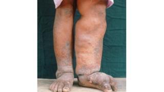 हात्तीपाइले रोग