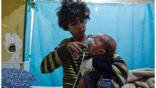 Menino põe máscara de oxigênio em recém-nascido após suposto ataque em Douma em janeiro de 2018