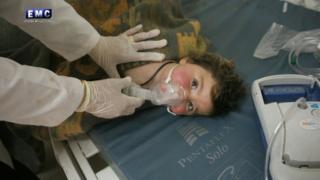 کودک آسیب دیده در حمله ای که گفته می شود شیمیایی بود