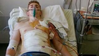 Lewis Evans in Greek hospital