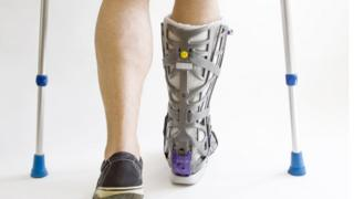 Man with broken foot