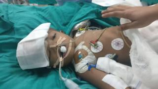 Conjoined twin boy after surgery