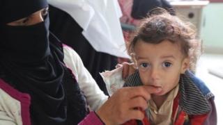 """المنظمات الإنسانية """"تخسر معركتها ضد المجاعة"""" في اليمن"""