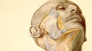 An image from the atlas showing a man's cheek partially dissected