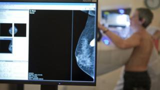 A woman having a mammogram