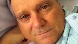 Jim McCants in hospital