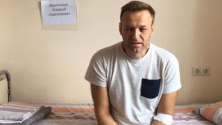 Navalny con el rostro hinchado