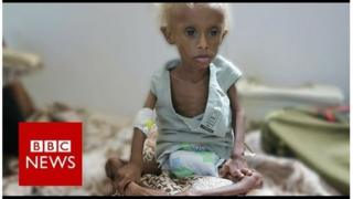 Macluusha ka jirta Yemen oo caruur badan saameysay